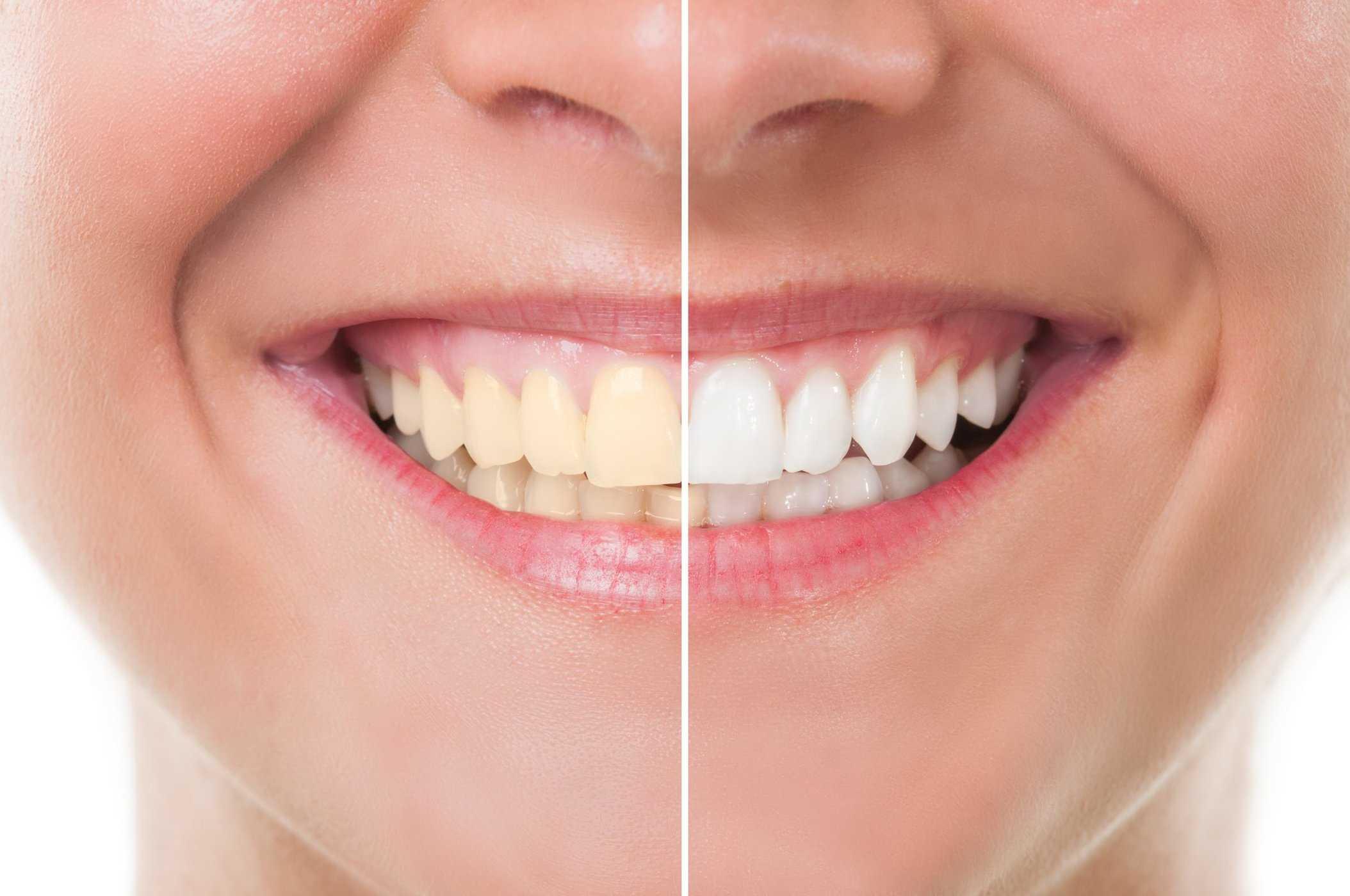 Tips Putihkan Gigi Kuning Berkerak Secara Semulajadi Abang Brian