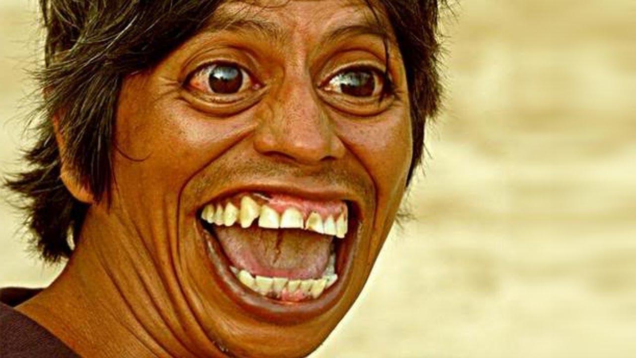 Adakah Benar Bila Ketawa, Akan Cantik Dari Dalam?