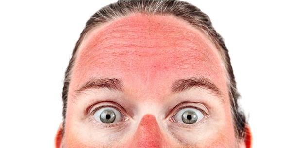 Tip Untuk Cerahkan Kembali Kulit Selepas Sunburn