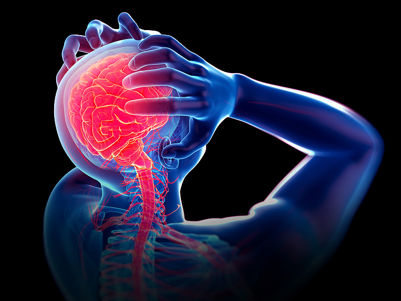 Sakit Kepala Biasa Atau Migrain? Apa Itu Migrain?