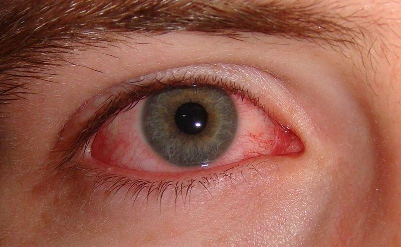 6 Sebab Kenapa Mata Anda Merah Ketika Memakai Kanta Lekap