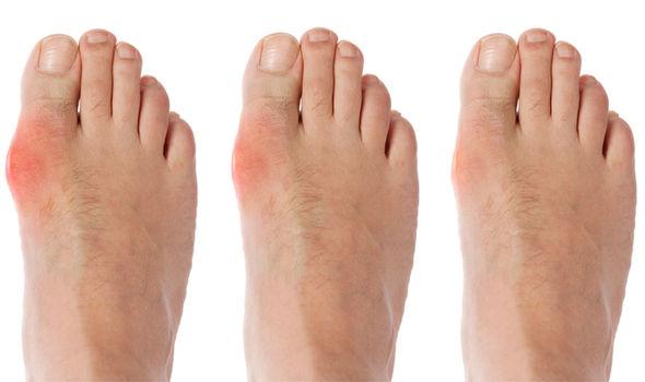 Daging Punca Gout? Jaga-Jaga