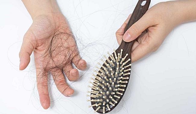 Tip Mencegah Rambut Gugur