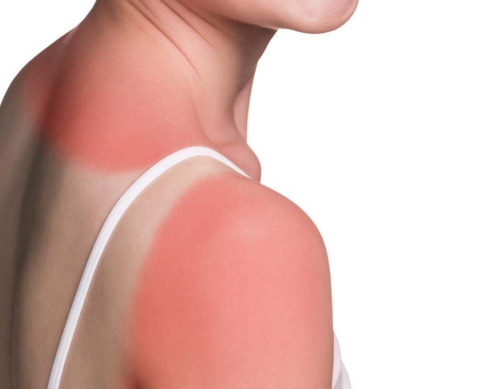 Cara Untuk Elakkan 'Sunburn'